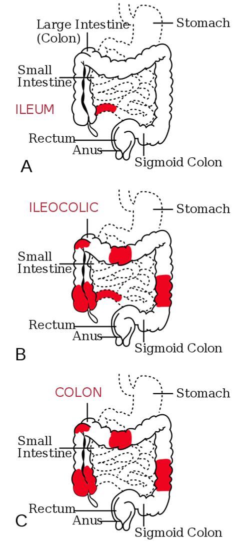colon anatomy ppt picture 14