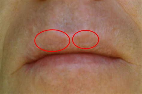 brown marks above my lips picture 10