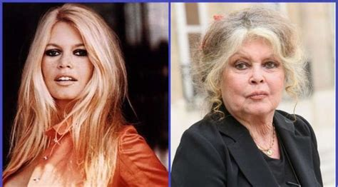 celebrities who are not aging well seniors picture 9