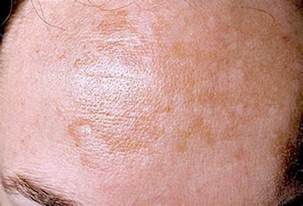 pics of skin problems in s picture 6
