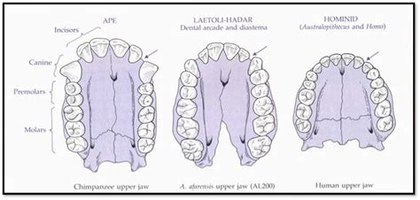h dental decay picture 16