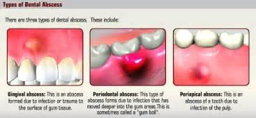 dental teeth picture 10