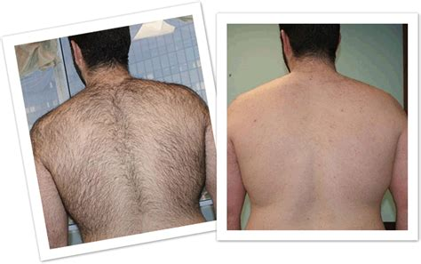back hair removal picture 9
