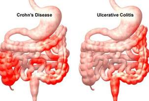 intestinal scarring from colitis picture 1