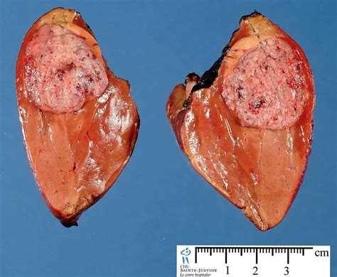 focal fatty liver picture 10