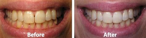 austin teeth whitening picture 3