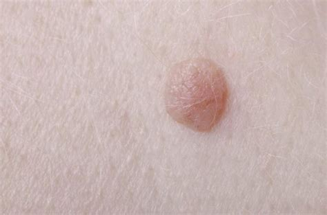 what do skin warts finger look like picture 17