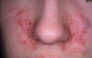 severe itching and scaling of the lips picture 10