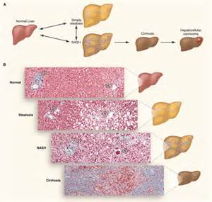 fatty liver syndrome picture 18