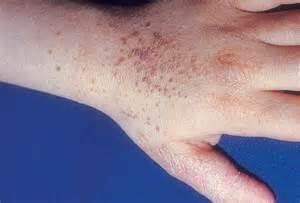 webmd pictures of genital warts picture 18