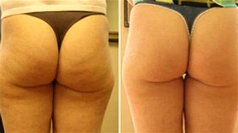 cellulite and water treatment picture 11