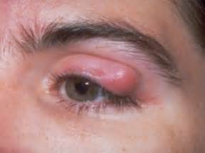 does blurry vision go away once thyroid is picture 13