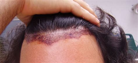 propecia for hair loss picture 9