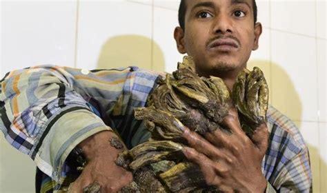 bangla likha ichthyosis treatment picture 1