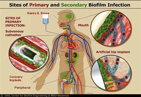 bacterial biofilms picture 14
