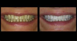 micropeeling cloth to whiten teeth picture 1