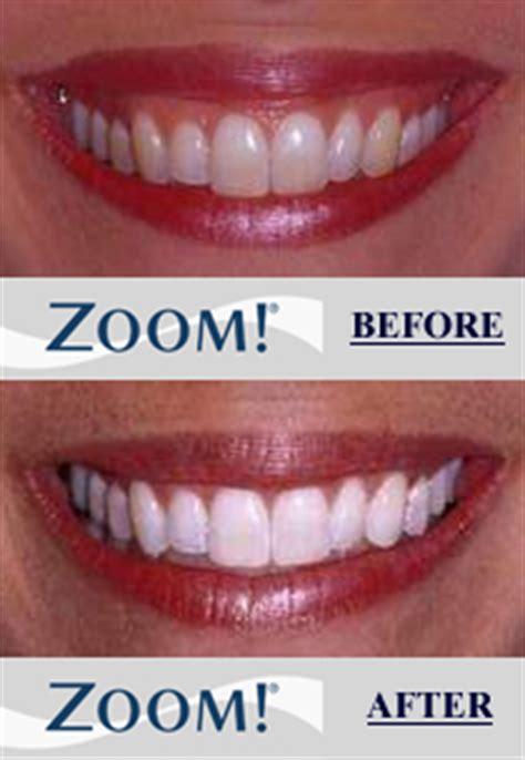 whiten teeth light picture 11