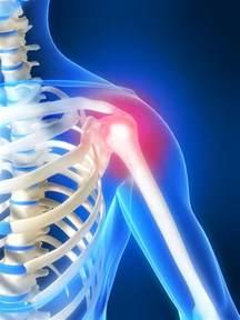 shoulder pain ache picture 2