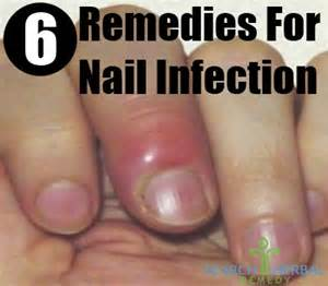 yeast infection cures picture 2