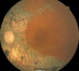 retinitis pigmentosa treatment picture 9