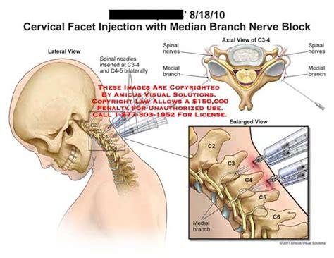 cervical facet joint procedure picture 2