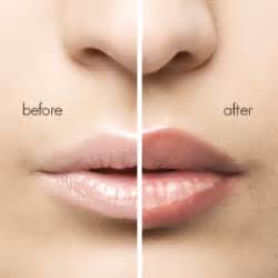natural lip plumper by derma picture 13
