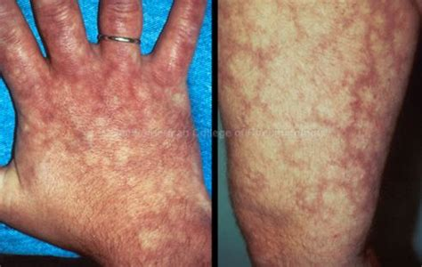 skin rash livedo picture 15