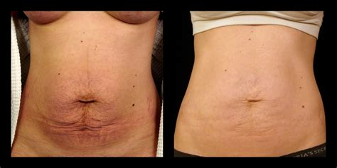 an skin tightening laser nj picture 6