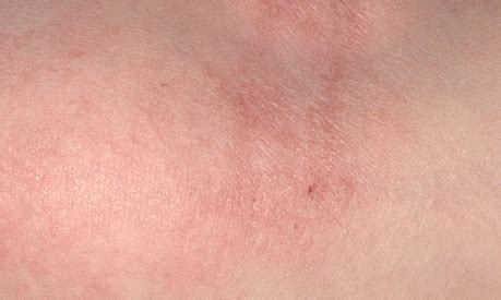 does stress dry out your skin picture 11