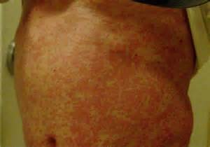 rash on stomach arms and back picture 7