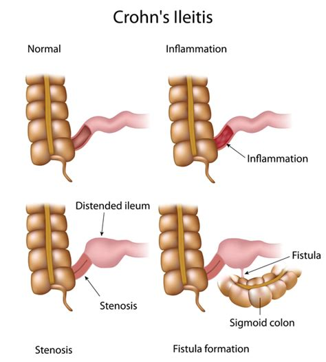 bowel strictures picture 2