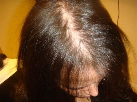 hair loss women picture 11
