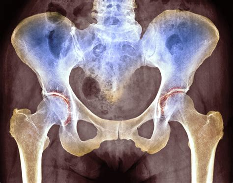 osteoarthritis hip joint picture 11
