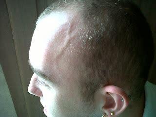 swollen temple veins picture 3