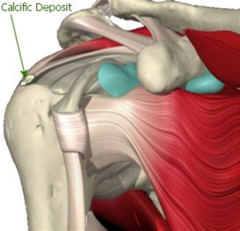 knee pain picture 9