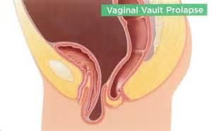 care plan vaginal prolapse picture 2