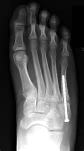 probable fracture of 5th toe joint picture 2