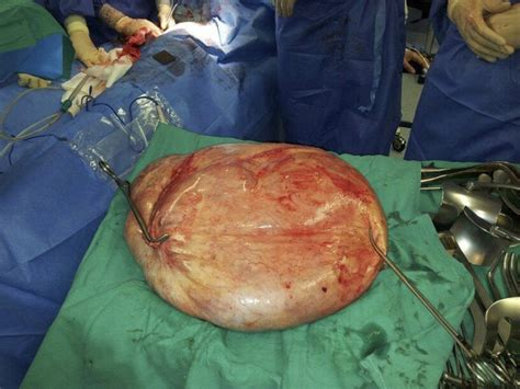 liver cyst septated picture 7