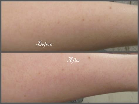 what causes acne on the arms picture 5