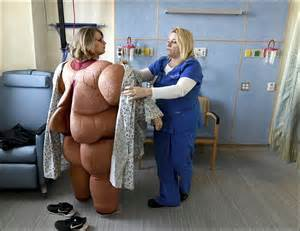 bariatric picture 2