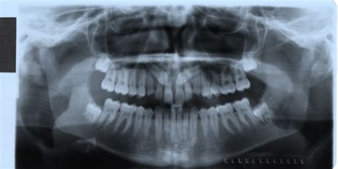 correcting impacted teeth picture 13