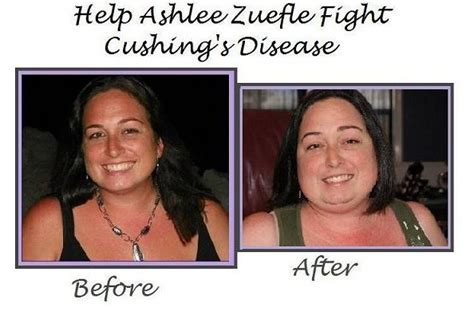weight loss symptom picture 9