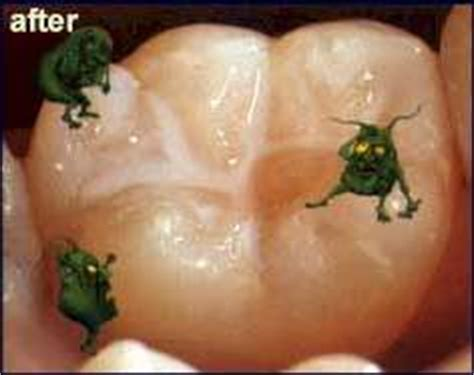fluoride damaged childrens teeth picture 3