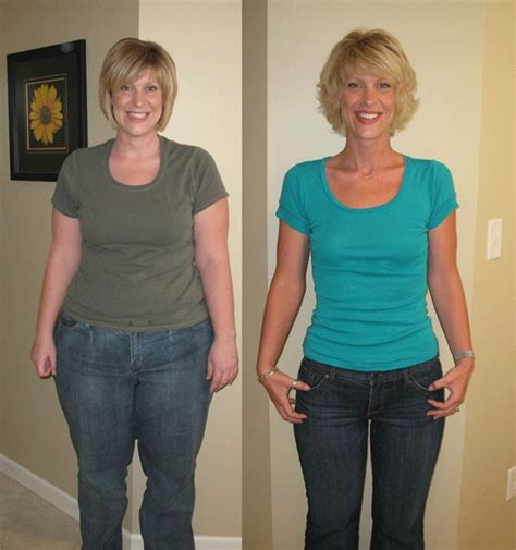 bariatric weight loss picture 10