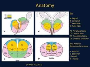 prostate exam picture 3