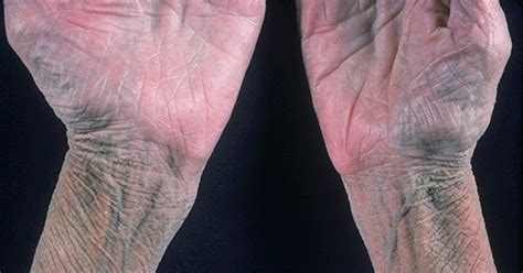 diabetic diet to reverse numbess in toes picture 5