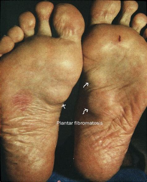 what is a liver hemangioma picture 17