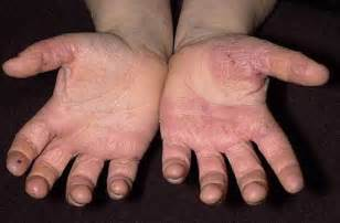 skin on hands picture 13