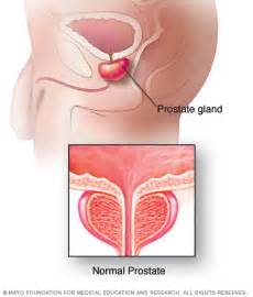 Prostate causes pain in penis picture 2