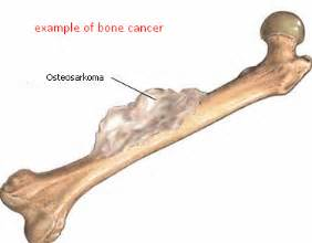 el cancer symptoms picture 14